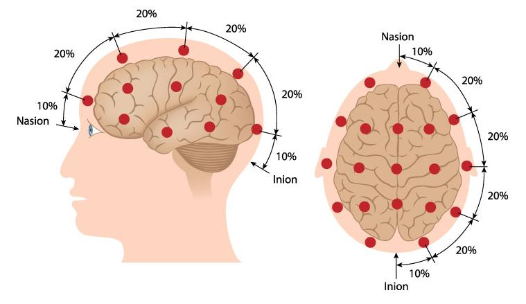 electroencefalogramaeeg